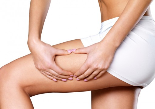 How to Get Rid of Cellulite : Ways to Kiss Your Cellulite Goodbye