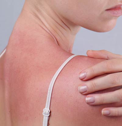 Sunspots on neck and chest
