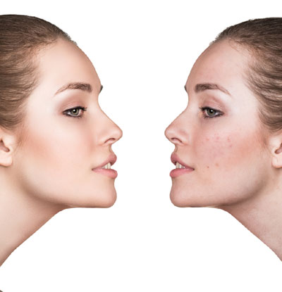 Unusual Changes in Skin Complexion