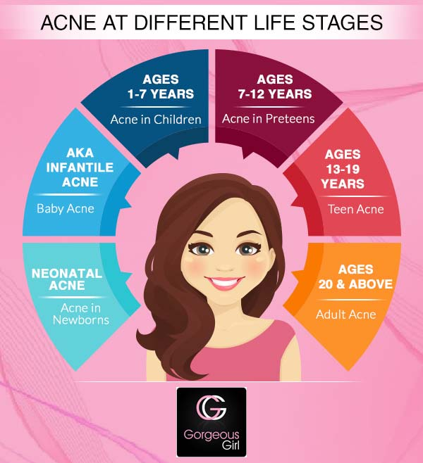 Acne at different stages