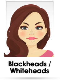 Blackhead & Whiteheads