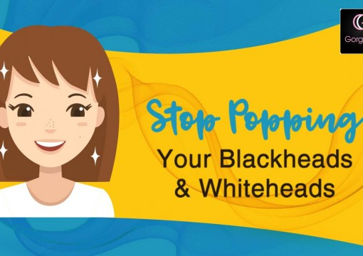How to Get Rid of Blackheads and Whiteheads Overnight