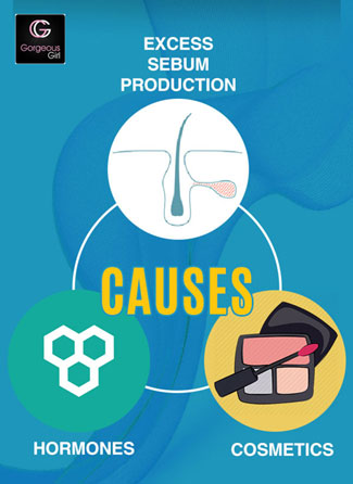 Causes of blackheads and whiteheads