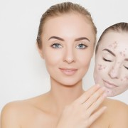 Acne scar removal treatment, Is it Really Good For Your Skin?