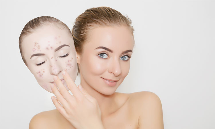 3 Ways Can Help You Get Rid Of Blackheads