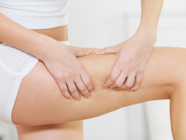How To Eliminate Cellulite On Legs And Thighs