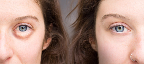 Successfully And Naturally Cover Your Dark Circles