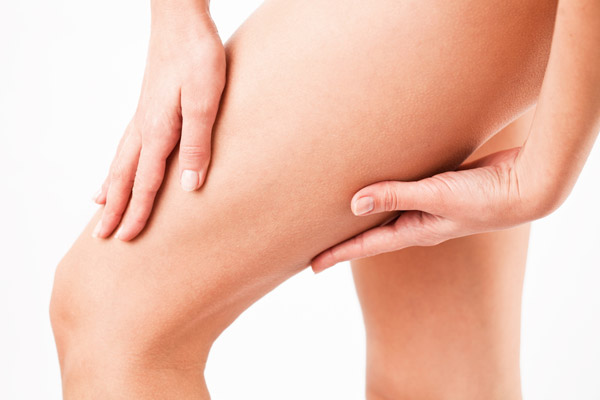 What Causes Cellulite On Legs And Thighs?