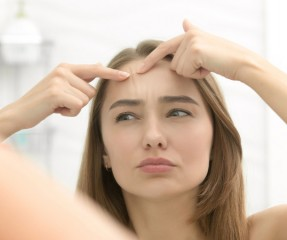 What Are White Bumps on Face? Five Easy Methods to Get Rid of Them
