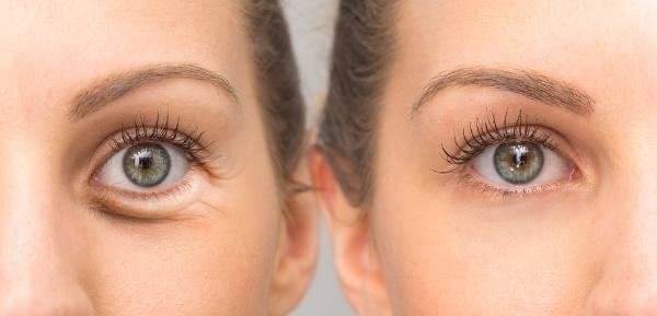 Causes Under Eye Puffiness