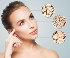Common Causes Of Dry Skin, Its Solution, And How Alcohol Intake Worsens It