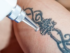 Laser Tattoo Removal Facts You Should Definitely Know About