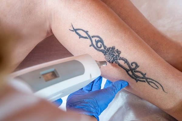 laser tattoo removal effects