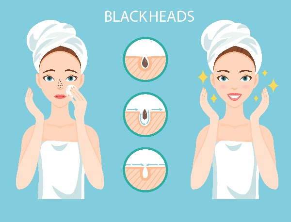 How do you get rid of blackheads