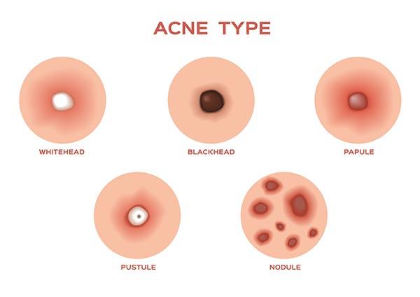 non-inflammatory -acne