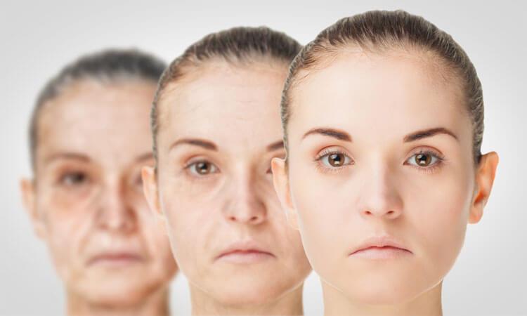 Photoaging Vs Normal Aging