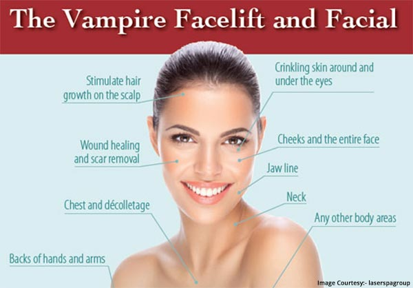 Skin Conditions For Vampire Facial