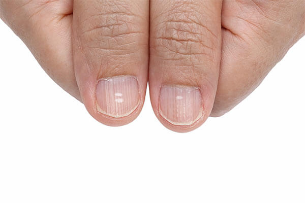 Vertical Lines On Nails