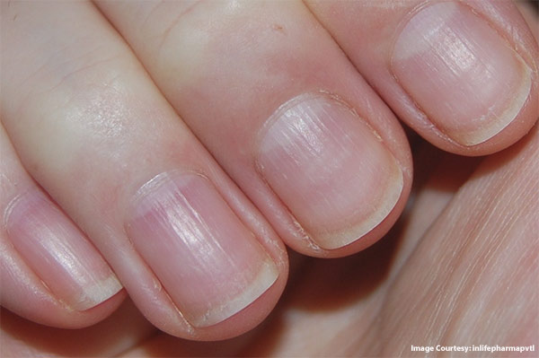 What-causes-brittle-nails