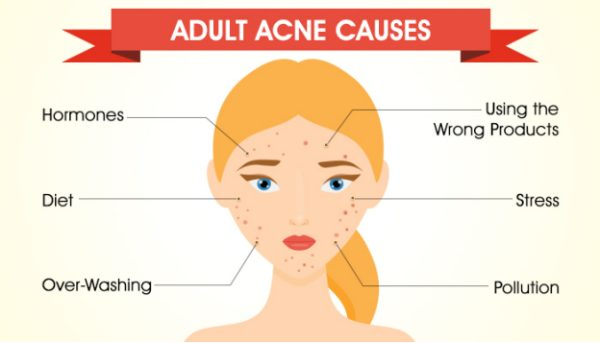 what is adult acne