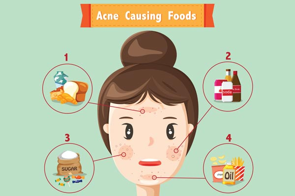Can Food Cause Acne