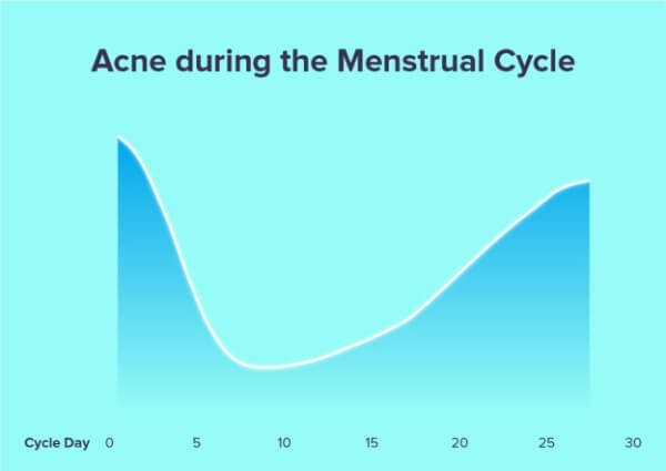 causes of hormonal acne