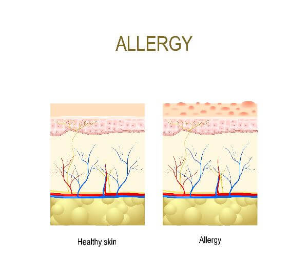 causes of skin allergy
