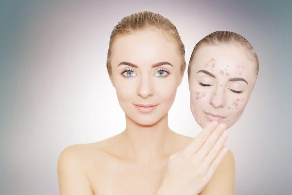 prevention of skin hyperpigmentation
