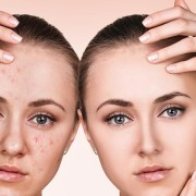 Understanding The Stages Of Acne And Its Treatments