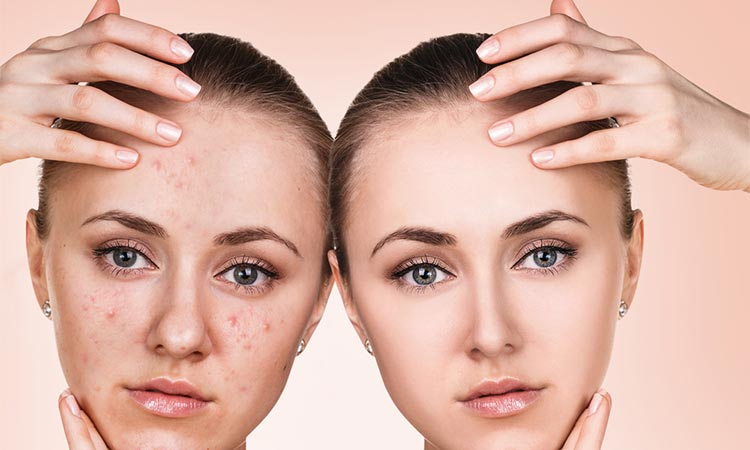 Sneaky Causes Of Acne. (From Hannah - ThankYourSkin.com)