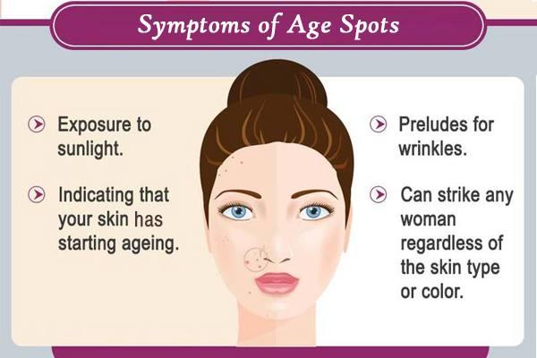 Symptoms Of Age Spots