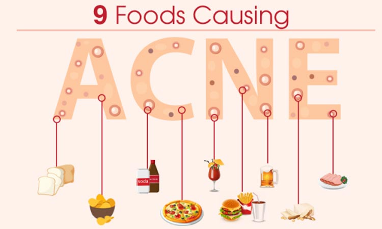 what foods cause acne