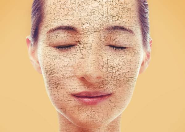 What Is Dry Flaky Skin