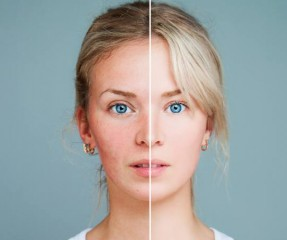 Acne Rosacea: Meaning, Symptoms, Causes, Treatments And Diet To Follow
