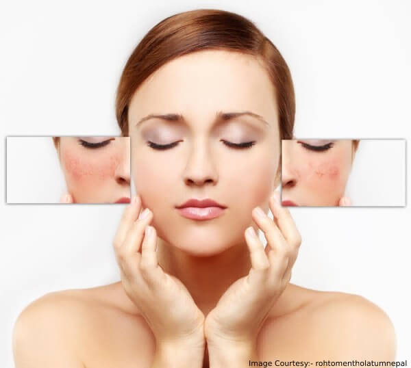 Causes Of Enlarged Pores