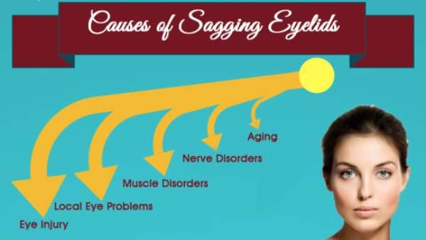 Causes Of Sagging Eyelids