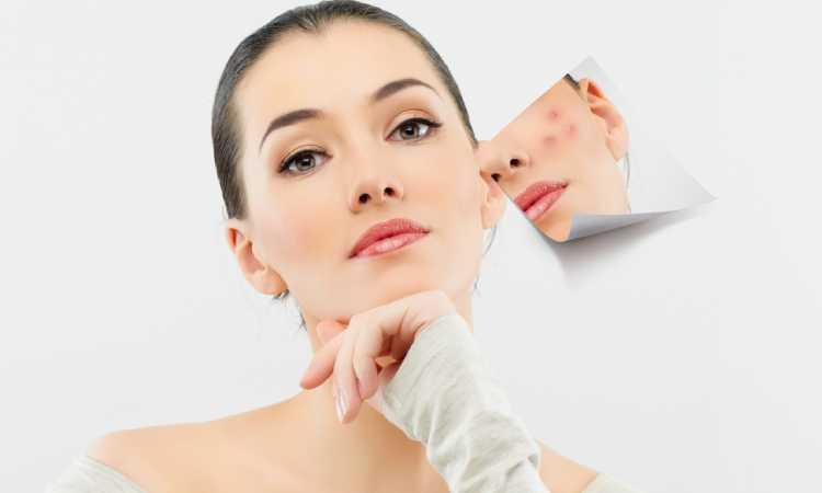 Trị sẹo lõm lâu năm bằng phương pháp tự nhiên có rất nhiều ưu điểm khác nhau