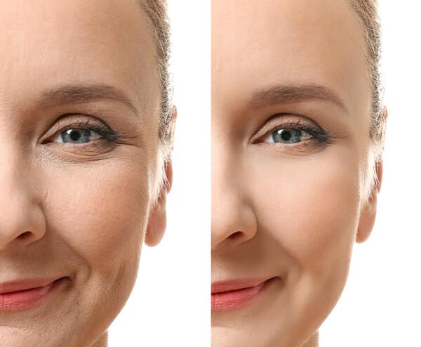 Hyaluronic Acid For Skin