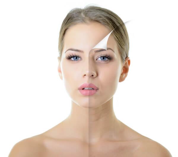 Hyaluronic Acid Skin Benefits