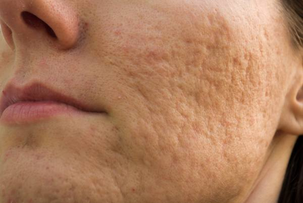 Rolling Acne Scars