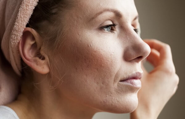 Treatment Of Enlarged Pores