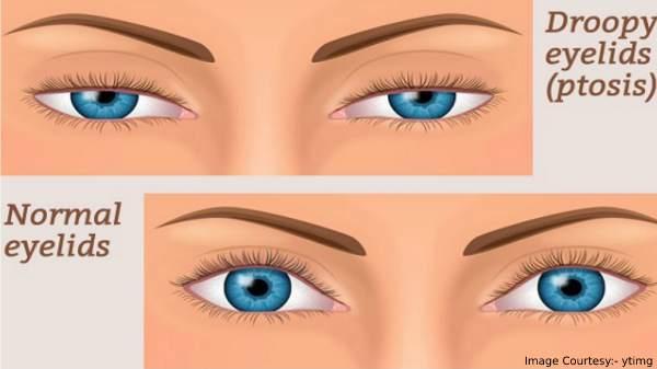 Ways To Treat Sagging Eyelids