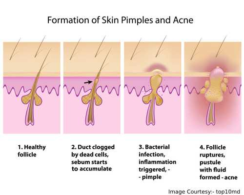 Formation Of a Pimple