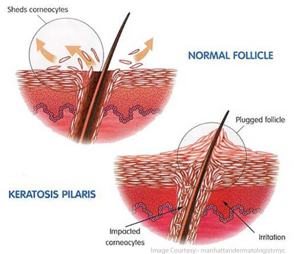 keratosis pilaris care
