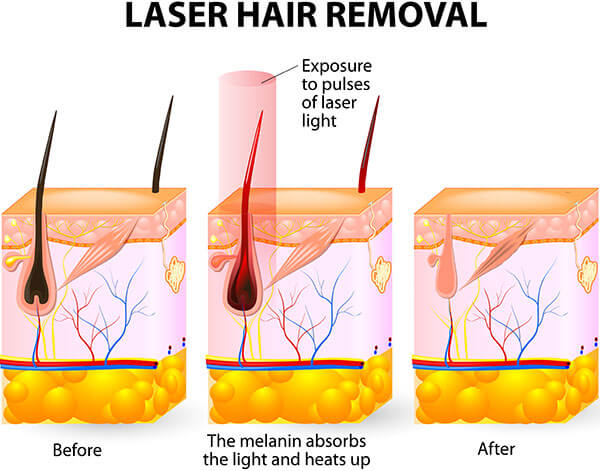 Treatment for removing ingrown hair permanently