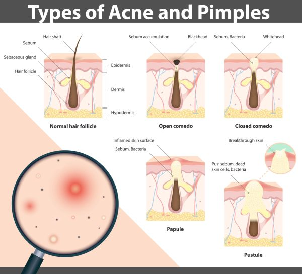What Causes Papules