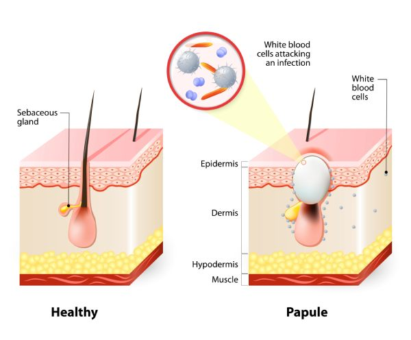 What Is Papule