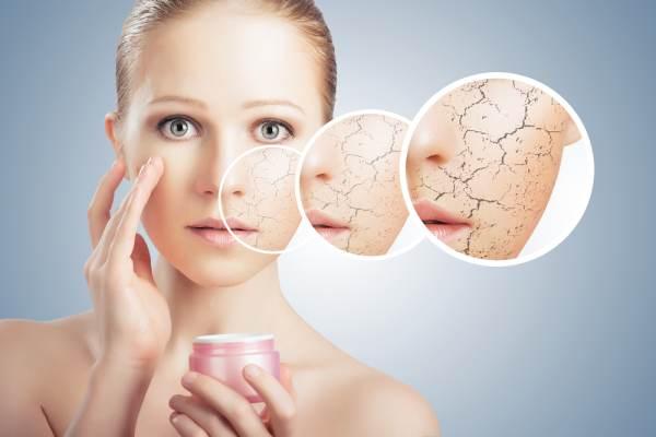 Xerosis Treatment Tips