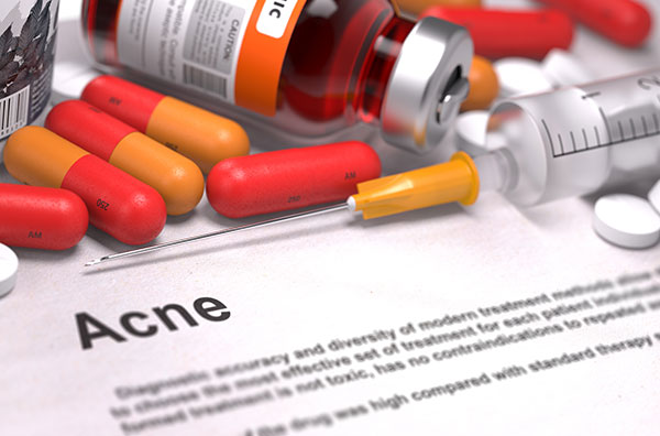Isotretinoin pills acne treatment