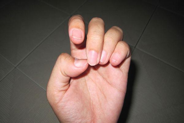 dry nail skin